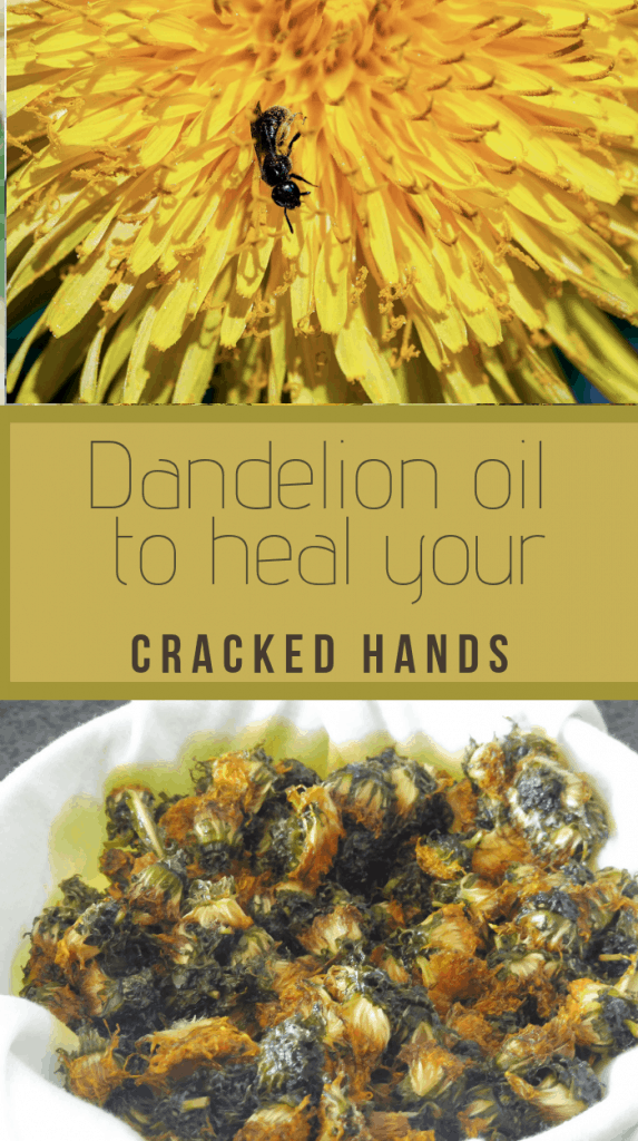 Dandelion oil for cracked hands