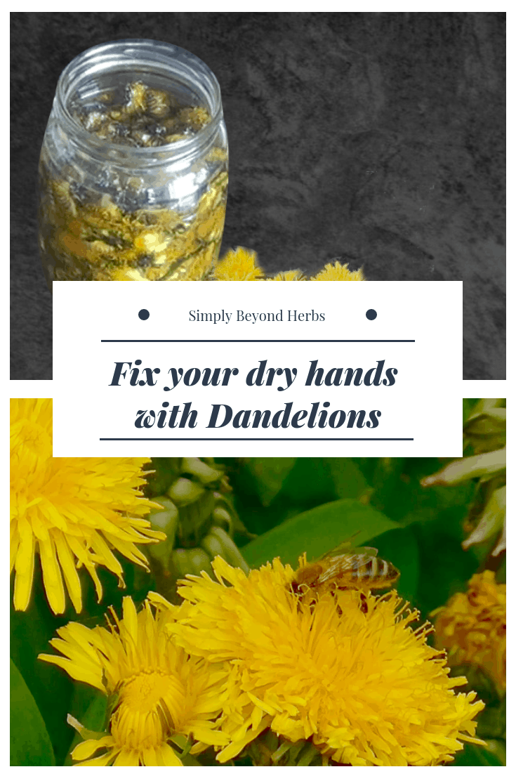 Fix your dry hands with dandelions